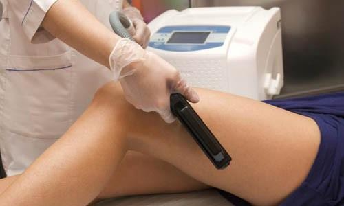 Tehnica Laser si indepartarea tatuajelor